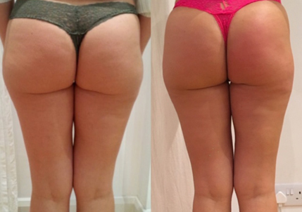 non surgical butt lift brazilian bum north london cheshunt loughton