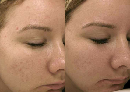 microneedling dermaroller dermapen north london loughton cheshunt enfield