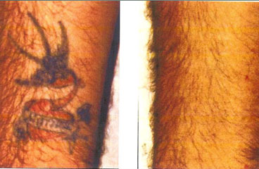 laser tattoo removal cheshunt enfield