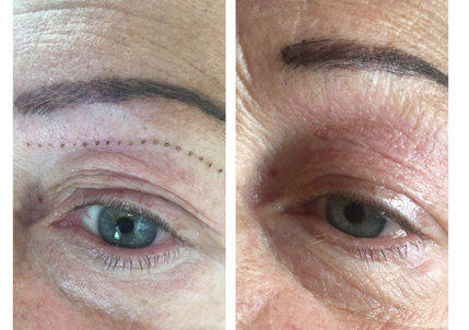 plasma pen fibroblast blepharoplasty cheshunt north london essex